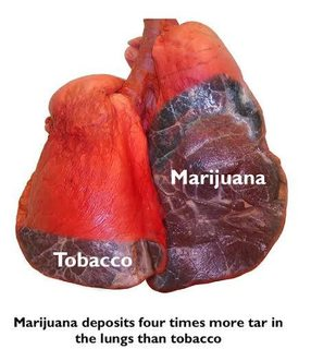 Lungs of MJ